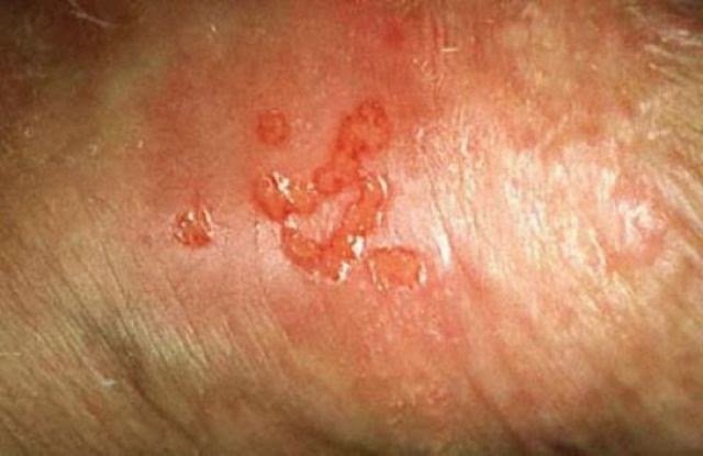 mild shingles rash pictures | Lifescript.com