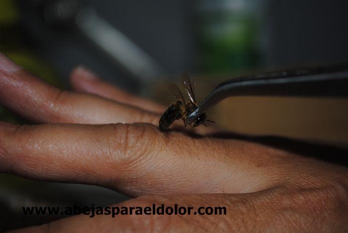 El curativo veneno de abeja