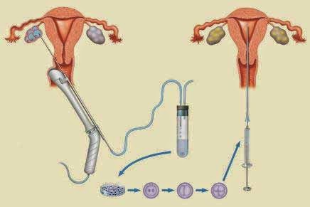 Sperm injected to women