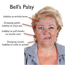 Herbs-Solution-For-Bell's-Palsy-And-Facial-Paralysis