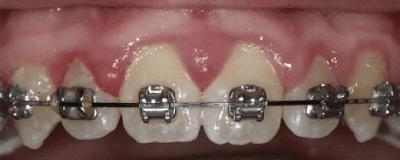 Kendinden bağlanan braketler ile elastik ligatür karşılaştırması. Fotoğrafın sol tarafındaki yan kesici dişteki geleneksel braketi ve elastik halkayı görmekteyiz.(4)