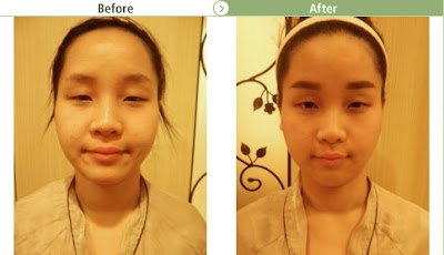 Face Reduction