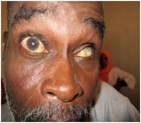 Glaucoma patient requires eye drops