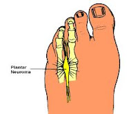 foot neuroma tampa