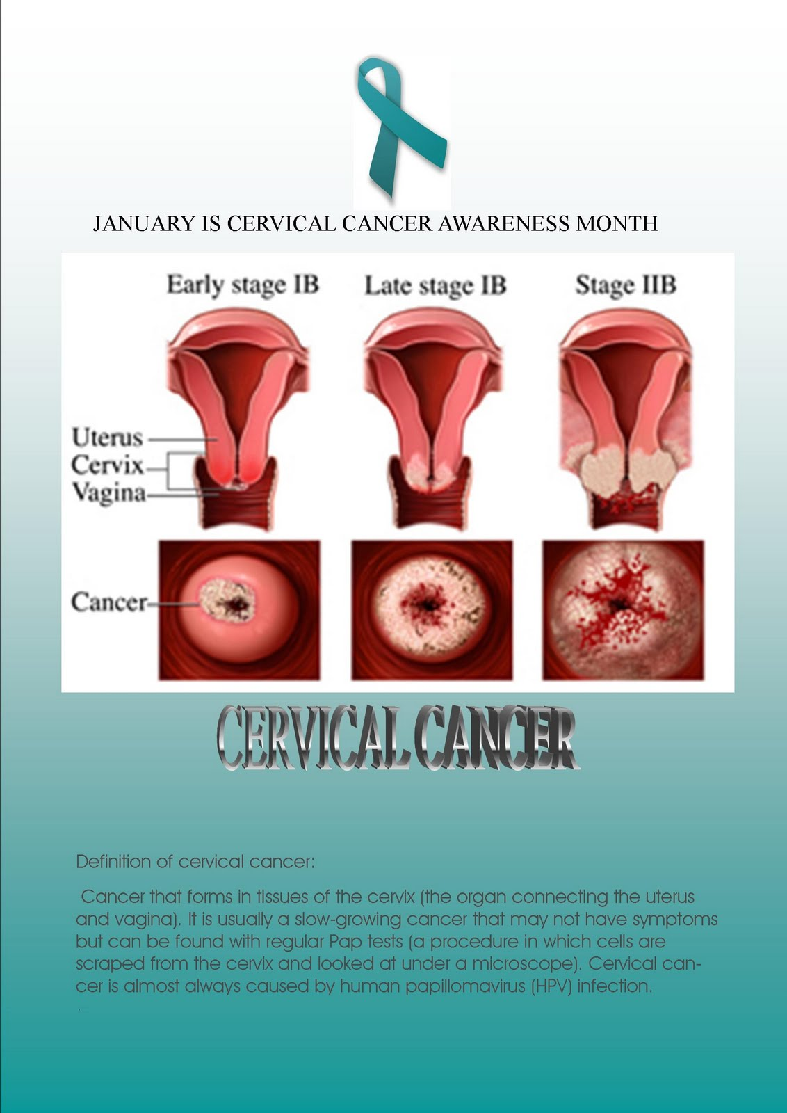 about cervical cancer Signs, symptoms and causes of cervical cancer cervical cancer and hpv information- cervical cancer warning signs, treatment and prevention.