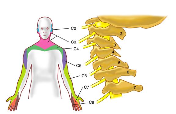 douleur arthrose cervicale que faire