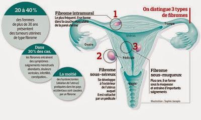 fibromes utérins