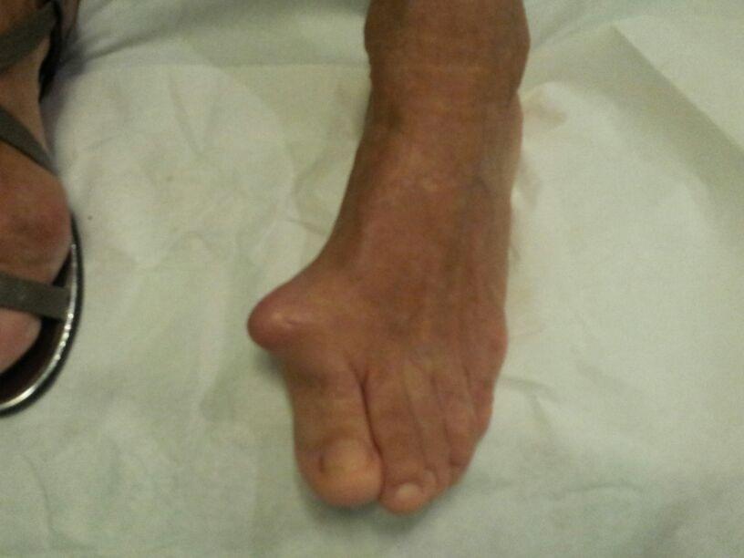 tabla de alimentos para acido urico fotos acido urico en los pies las lentejas dan acido urico