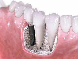 Teeth Implants Arizona