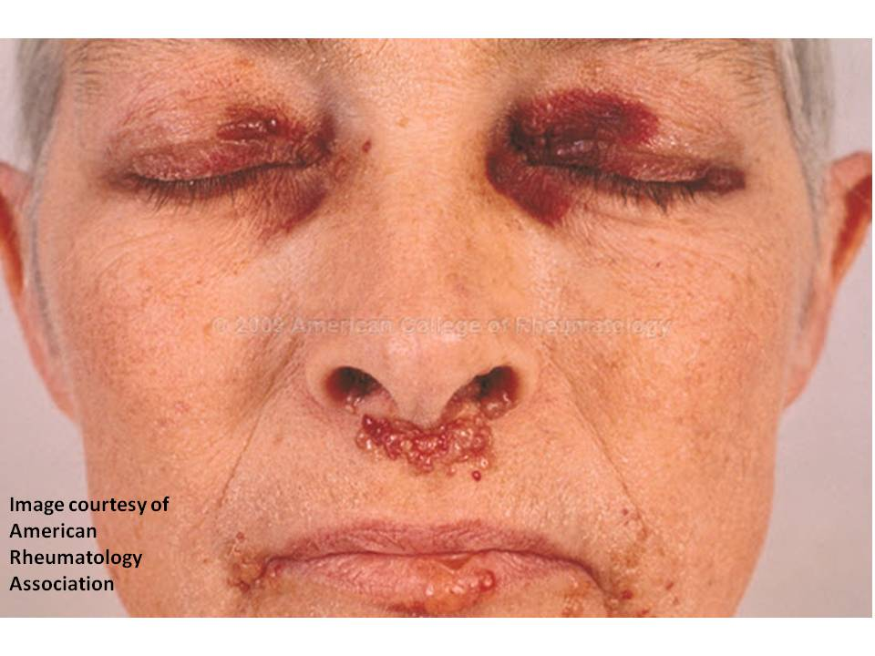 Consultations in Dermatology: Unusual Bruising or ...