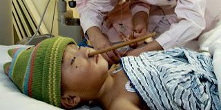 Cedera Tertusuk Kayu Chopstik Di Kepala