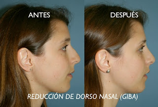 rinoplastia_operacion_nariz_cirujano_plastico_cirugía_plastica