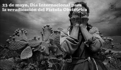 El 23 de mayo se commemora el día internacional para la fístula obstétrica