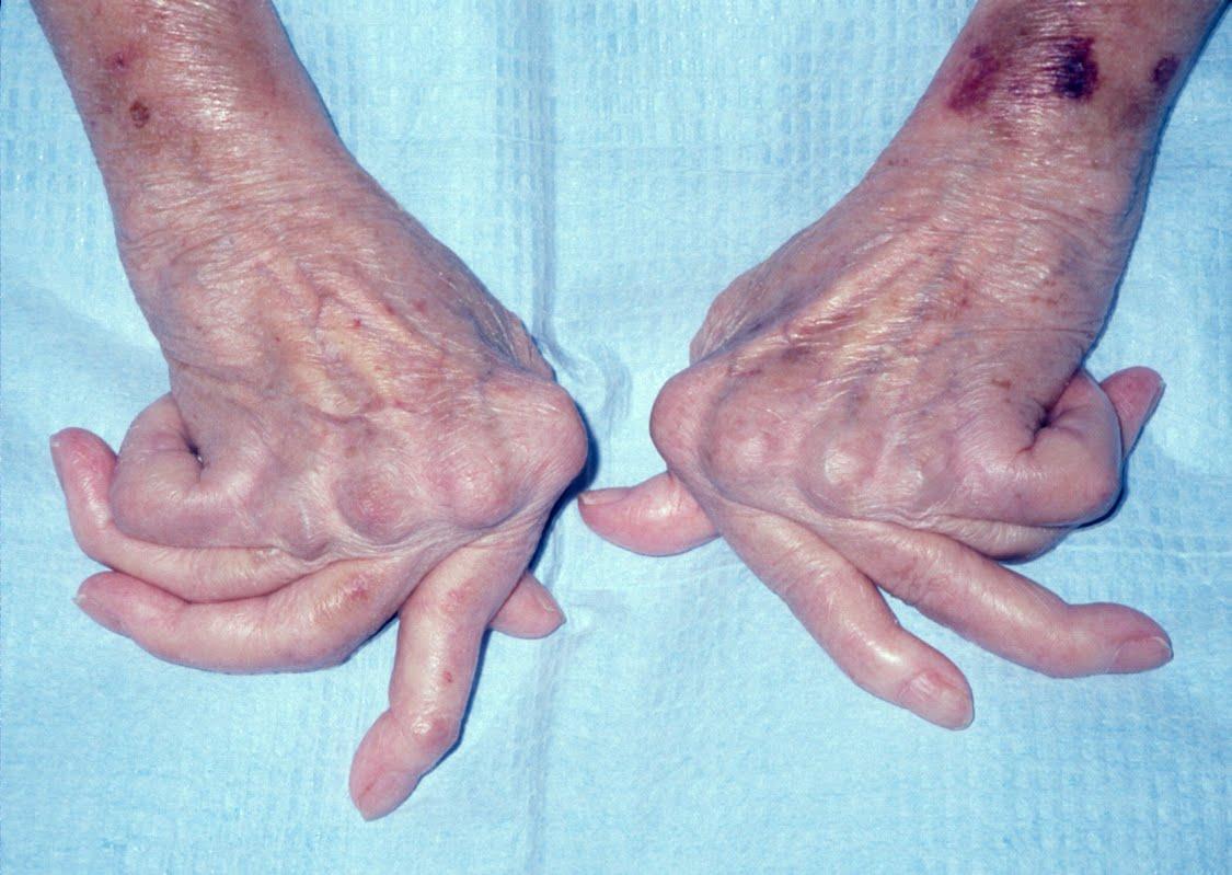 Tại sao phải điều trị sớm bệnh viêm khớp dạng thấp?
