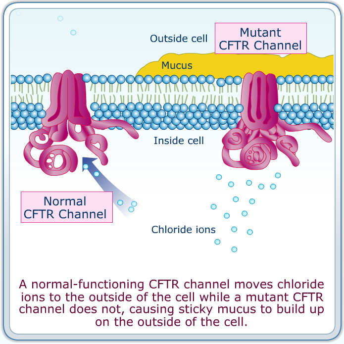 explain cystic fibrosis People with cystic fibrosis can still lead an active life when the condition is properly managed cf is a genetic disease that mainly affects the lungs and digestive system, but it can result in fatal complications such as liver disease and diabetes.