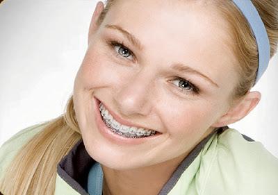 curso de ortodontia