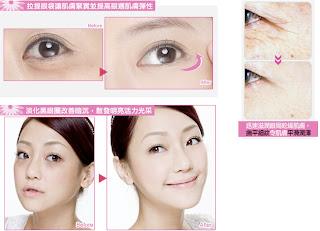 Obat Menghilangkan Kantung Mata Eye Lift