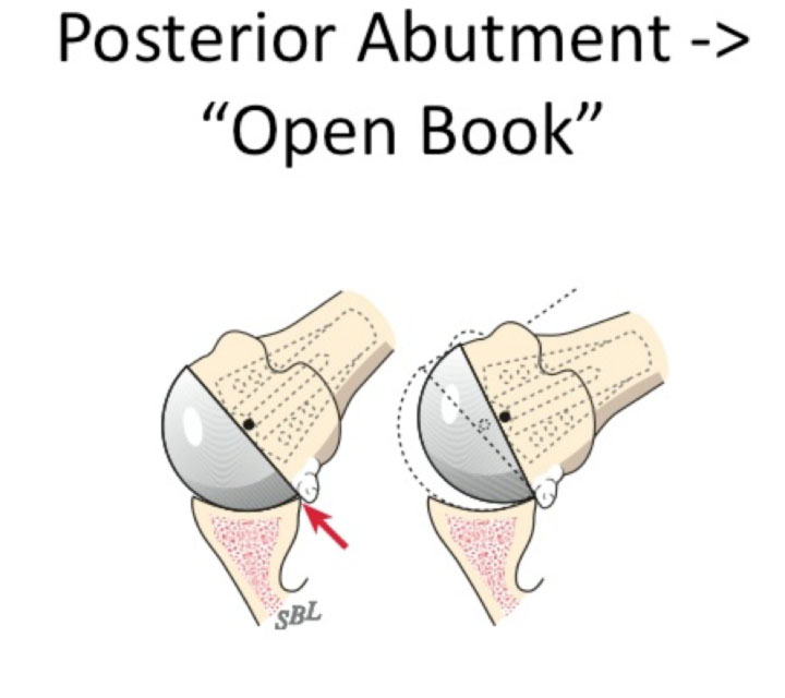 the register proper (does the humeral head fit nicely in the glenoid-4.bp.blogspot.com
