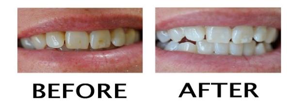 4 Cara Alami Hilangkan Noda Kuning Di Gigi Tidak Pakai Mahal