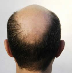 rambut botak tengah