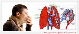 Pengertian Dan Ciri-Ciri Penyakit Paru-Paru Basah Dan Pencegahan