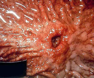 Goldman Stomach Cancer Symptoms