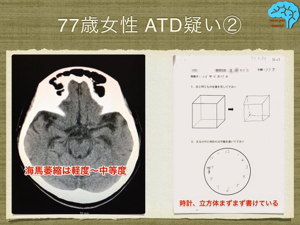 頭部CTと時計描画、透視立方体模写に問題はない。