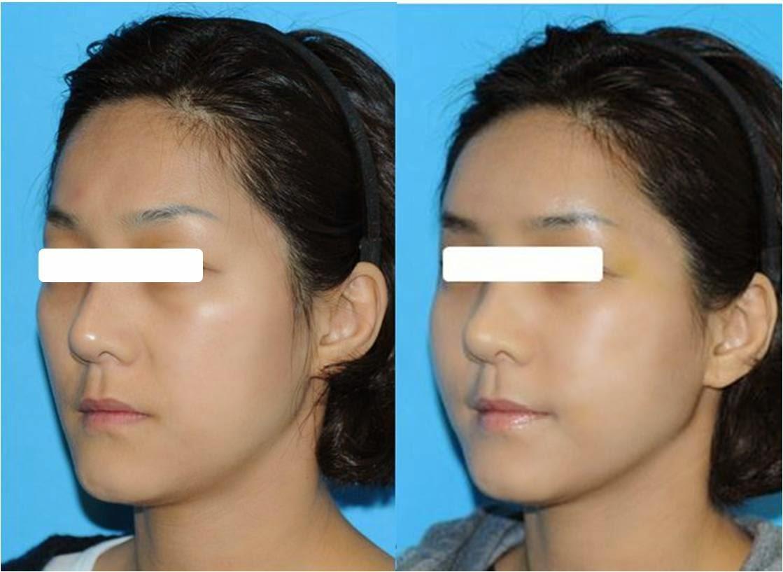 Пластическая хирургия в алматы липофилинг пластическая хирургия в г уфа