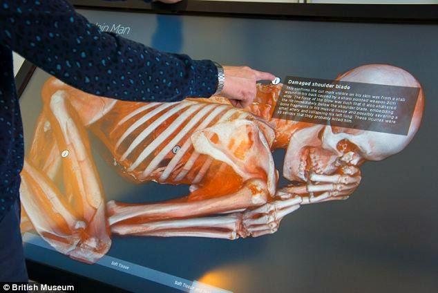 Autopsia de una momia.