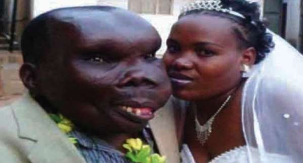 The ugliest man and woman in the world