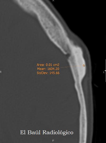 El Baúl Radiológico: OSTEOMAS CRANEALES. (Cranial Osteomas. CT ...