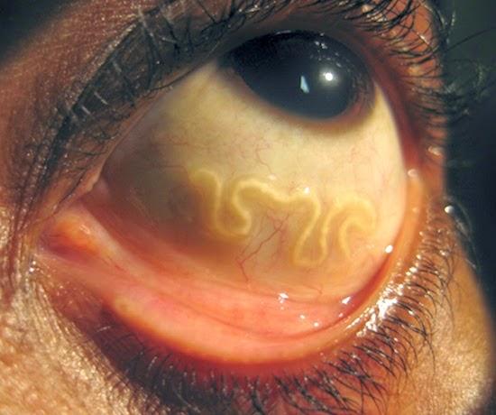 10 Horrifying Parasites That Might Be Living Inside You