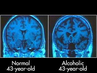 Bukti Ilmiah Alkohol Dapat Merusak Otak