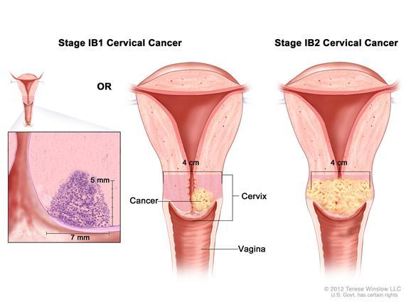 Cancer stories vaginal