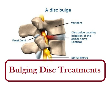 bulging disc treatments - medimiss, Human Body