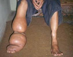 sakit kaki gajah