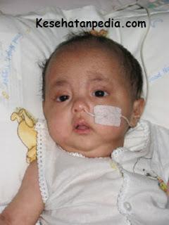 Indikasi pemasangan NGT pada bayi