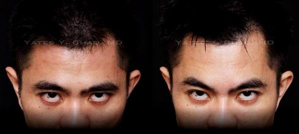玻尿酸額頭塑形, Juvederm forehead recontouring, 趙彥宇