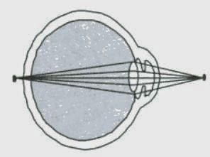 Pengertian Hipermetropi (Rabun Dekat)
