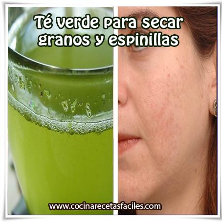 Belleza facial , cuidados del rostro, remedios caseros de té perder acné , granos , espinillas