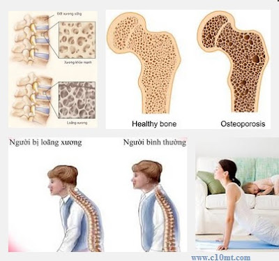 Triệu chứng yếu tố biểu hiện của bệnh loãng xương