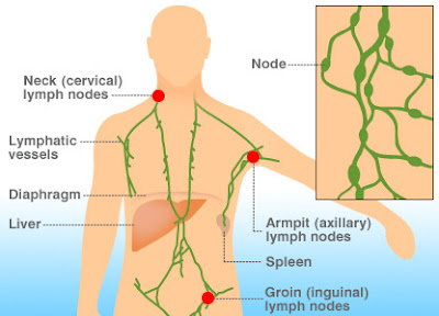 symptoms of lymphoma aguileon health tech