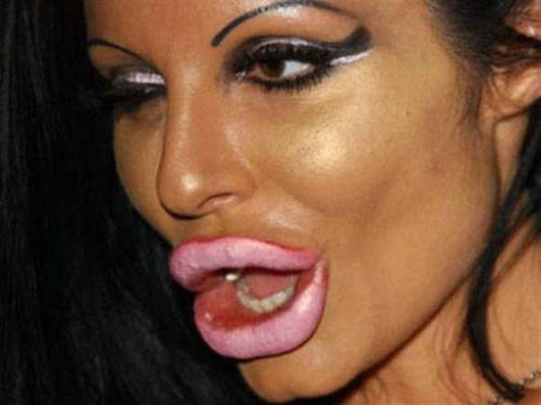 силикованные губы фото