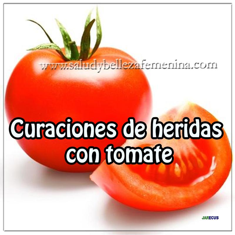 Remedios y tratamientos, remedios caseros para curar heridas, tomate