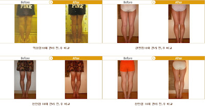 Curved Legs Care, Bowed Legs, Bow Legs