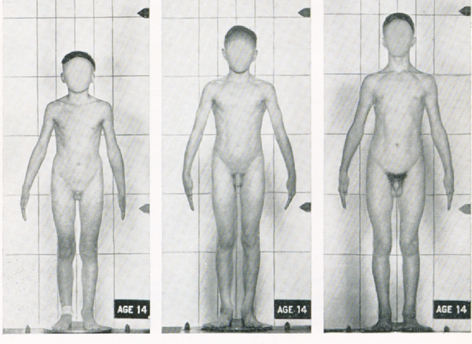 naked boy in sexual maturation