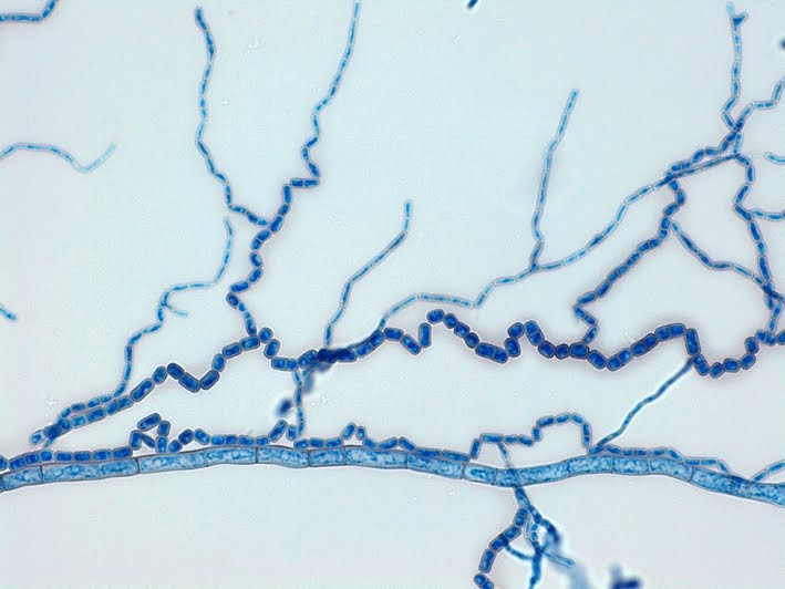 Dark Septate Hyphae Broad Septate Hyphae And