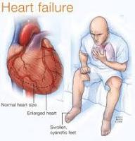 Pengobatan Untuk Sembuhkan Gagal Jantung