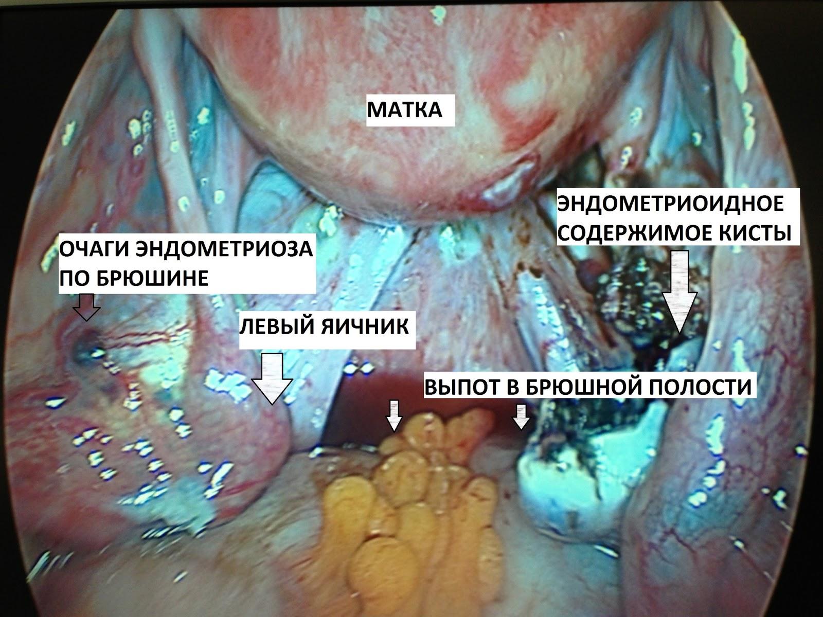 Гинеколог увидел две вагины фото 360-848
