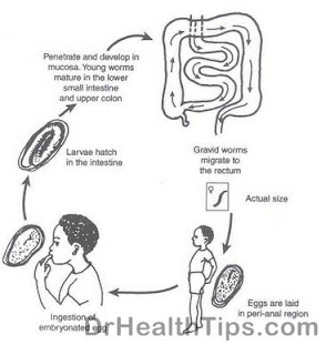 causes of worms infection